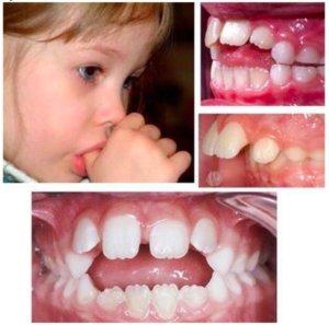 Mosaico com imagens da arcada dentária de crianças que chupam o dedo