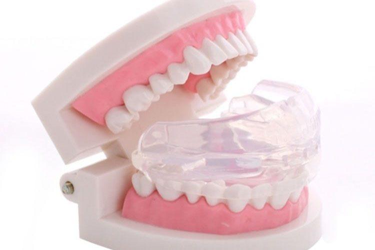 Aparelho Intra Oral em uma dentadura de exemplo