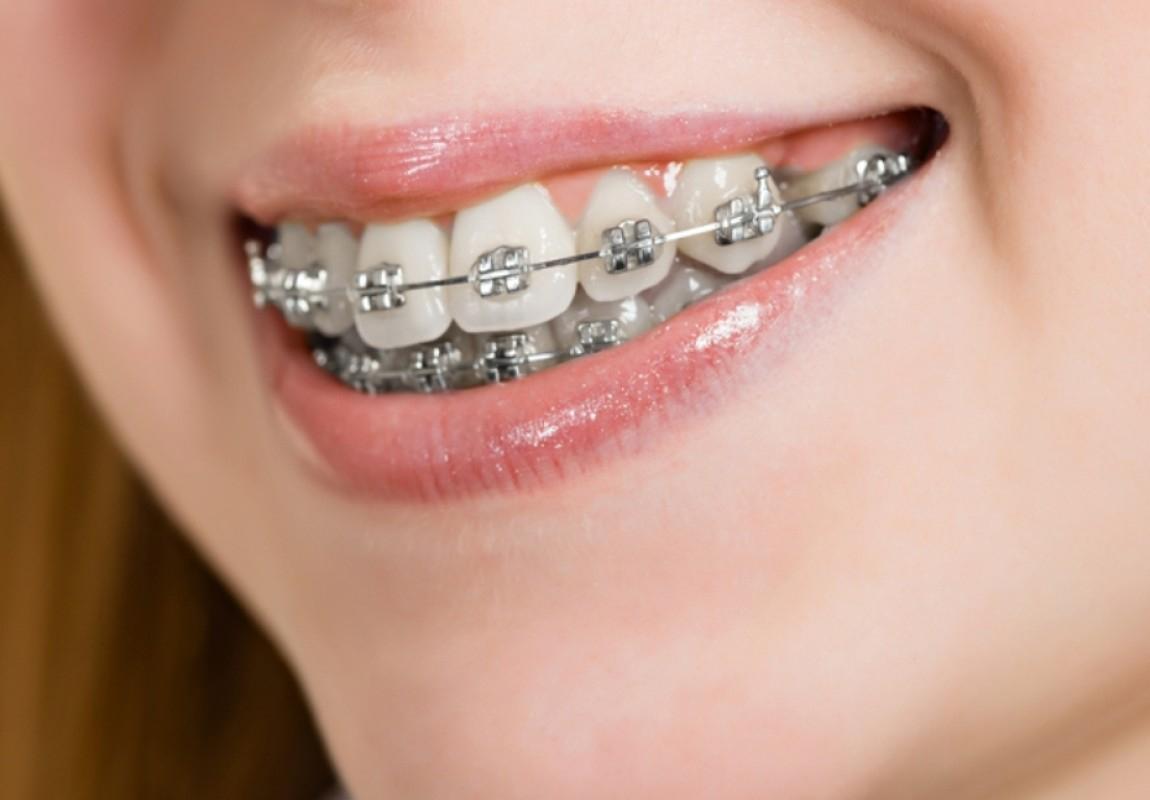Ortodontia Moderna