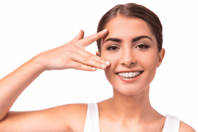 blog-artigo-aparelho-metalico-e-ceramico-orthoclin-2