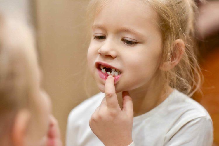 Criança sem alguns dentes