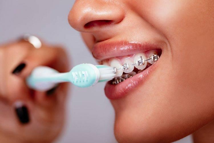 Imagem destaque artigo Orthoclin - Dicas para evitar a gengivite